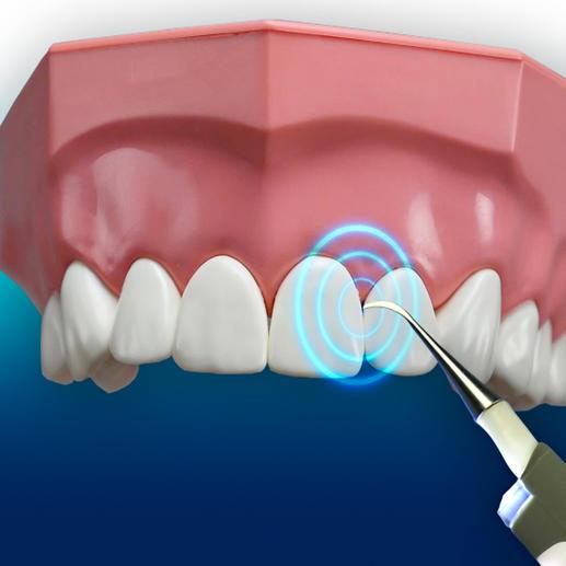 Mit 3.000 Vibrationen/Min. erreichen Sie kleinste Zahnzwischenräume.